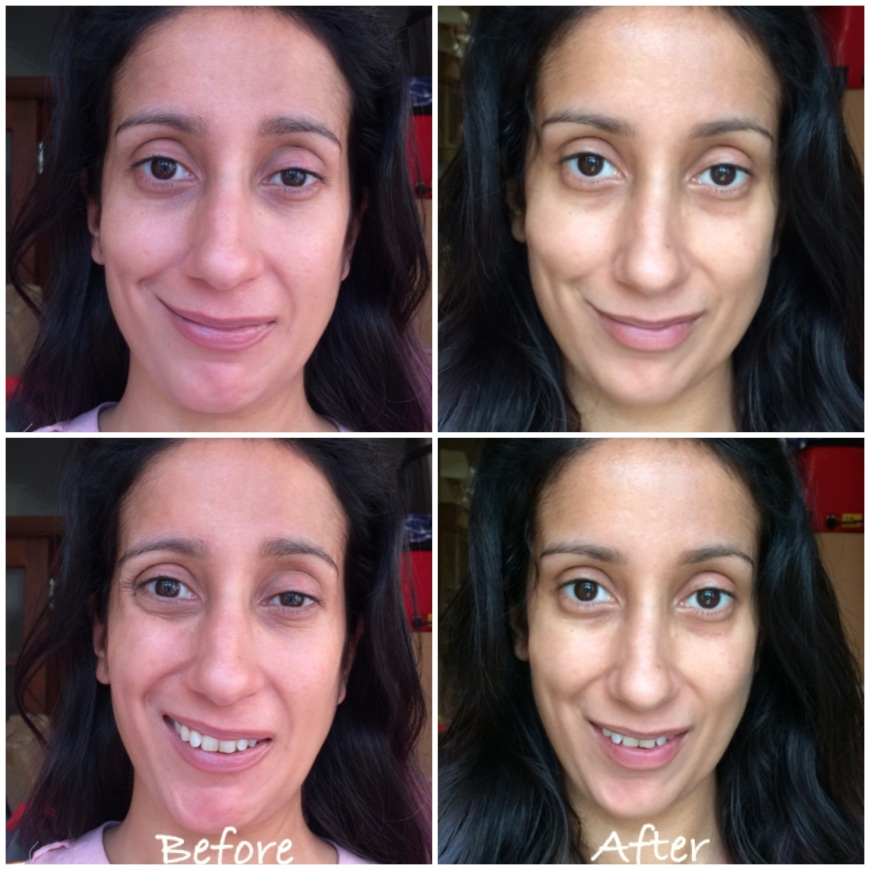 My session of Botox I had 8 months ago, before pictures are taken day before Botox, after pictures taken 2 weeks after botox.